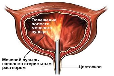 Схема уретроцистоскопии
