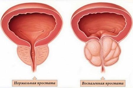Характеристика симптомов, причин и способов лечения простатита у мужчин
