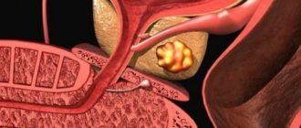 Что такое аденокарцинома предстательной железы и как ее лечить