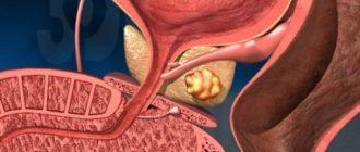 Сколько живут при раке предстательной железы 4 стадии с метастазами в кости