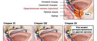 Прогноз продолжительности жизни при раке предстательной железы 1 степени