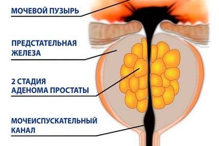 Левофлоксацин от хронического простатита