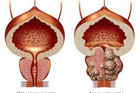 Что нужно знать о первых признаках аденомы предстательной железы и ее лечении