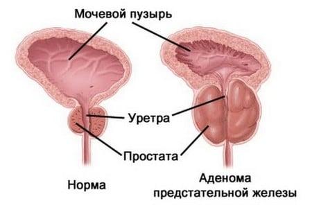 Схематическое изображение аденомы предстательной железы