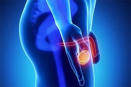 Какие схемы лечения простатита подойдут большинству мужчин