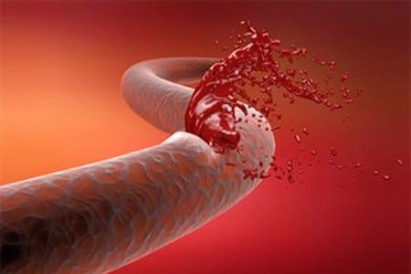 Кровь вытекает из вены