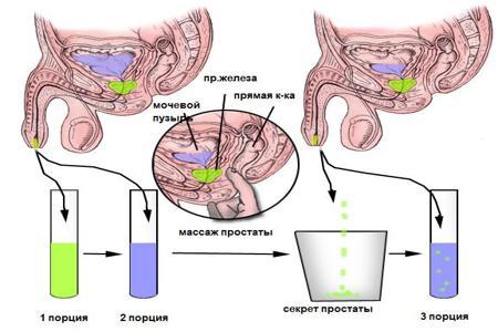 Схема использования массажа простаты для диагностики