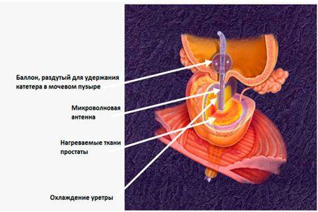 Схема микроволновой терапии простаты