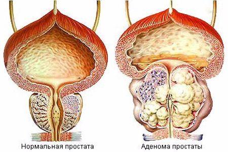 Рисунок нормальной и воспалённой простаты