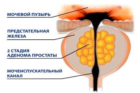 Схема II-й стадии гиперплазии