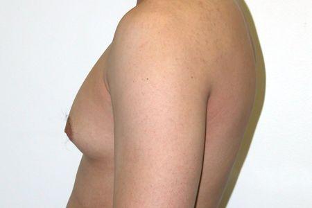 Мужчина с увеличенной грудью