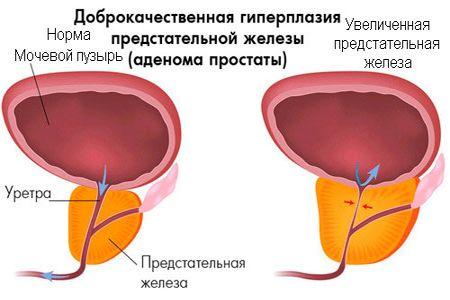 Как испытать оргазм предстательной железы