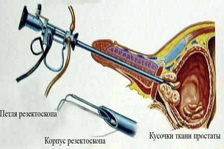 Операции по удалению аденомы простаты в сочи