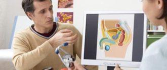 Что такое аденомэктомия: типы, техника проведения, восстановление