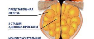 О симптомах, причинах и лечении аденомы предстательной железы у мужчин