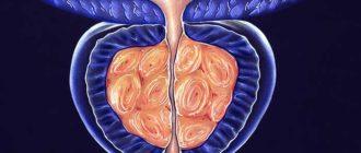 Что такое бактериальный простатит (бактерии в предстательной железе)