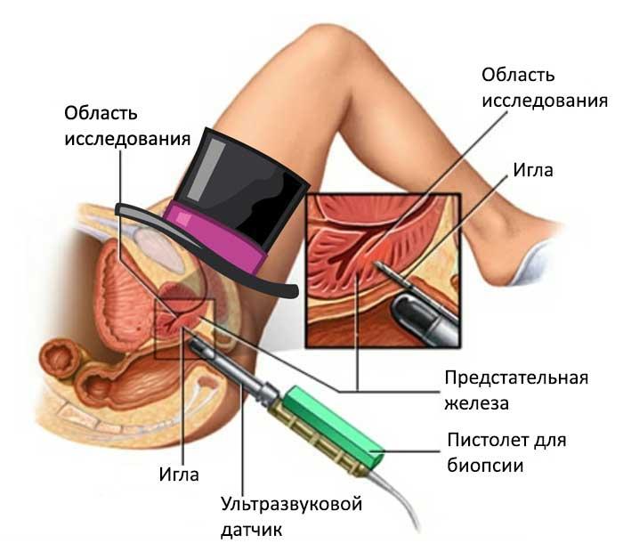 Биопсия-на-первой-стадии-онкологии-простаты