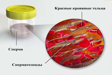 Рисунок изображающий кровь в пробе спермы