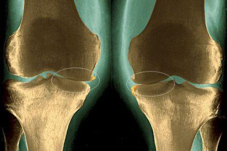 Рентген-снимок коленей