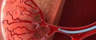 Что такое эмболизация артерий простаты: кому показано, техника выполнения, отзывы
