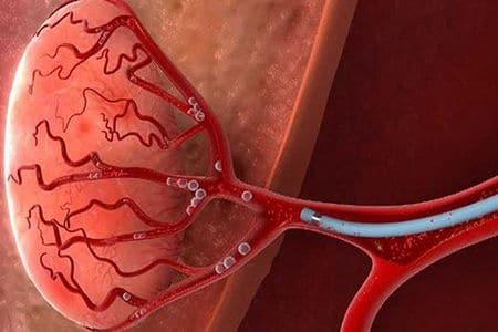 артерии простаты