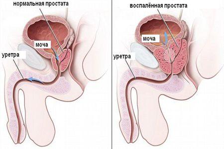Схема развития простатита