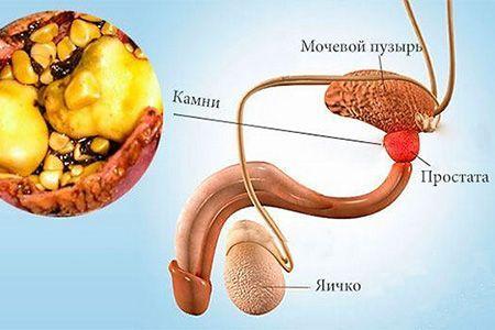 Камни в предстательной железе - лечение и симптомы