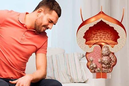 Как лечиться от аденомы предстательной железы в домашних условиях