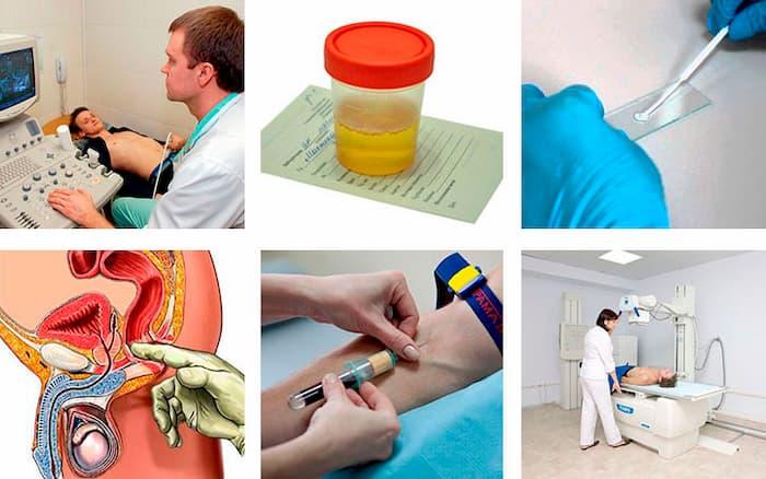 Методы диагностики аденомы простаты