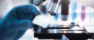 Норма лейкоцитов в простате: показатели при простатите