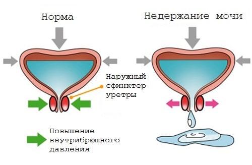Недержание мочи после удаления аденомы простаты