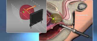 Немедикаментозная коррекция простатического болевого синдрома после мультифокальной биопсии предстательной железы
