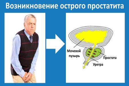 Мужчина, держащийся за живот и плакат со схемой простатита