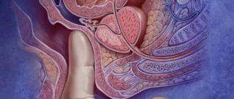 Можно ли делать массаж простаты при аденоме предстательной железы