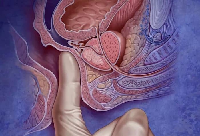 Пальцевой массаж простаты при аденоме