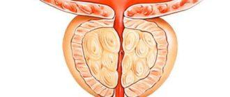 Размер простаты в норме и при аденоме простаты (ДГПЖ)