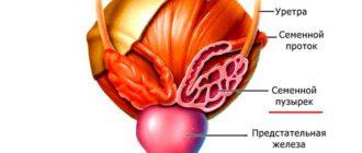 Что такое простатовезикулит, как определить и лечить болезнь