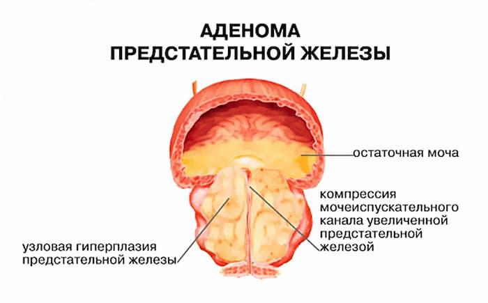 Признаки аденомы предстательной железы