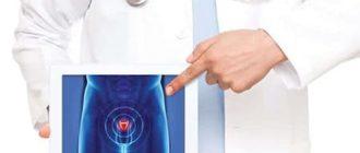 Почему возникают рубцы на простате: признаки и способы лечения