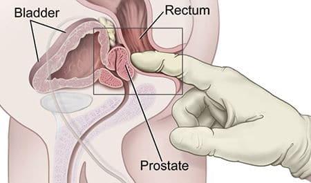 Схема нахождения простаты в организме мужчины с фото