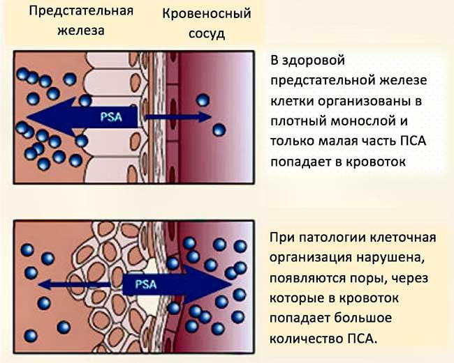 PSA и PHI - схожие показатели