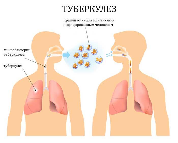 Пути заражения туберкулезом предстательной железы