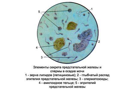 секрет простаты под микроскопом