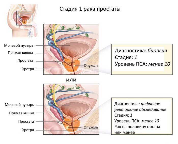 Схема-рака-простаты-1-стадии