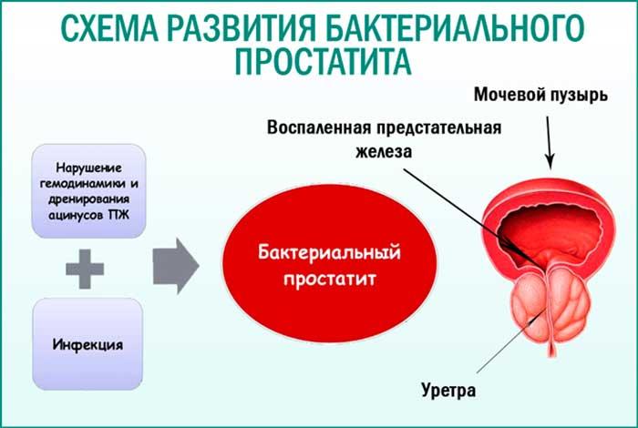 Схема развития бактериального воспаления простаты