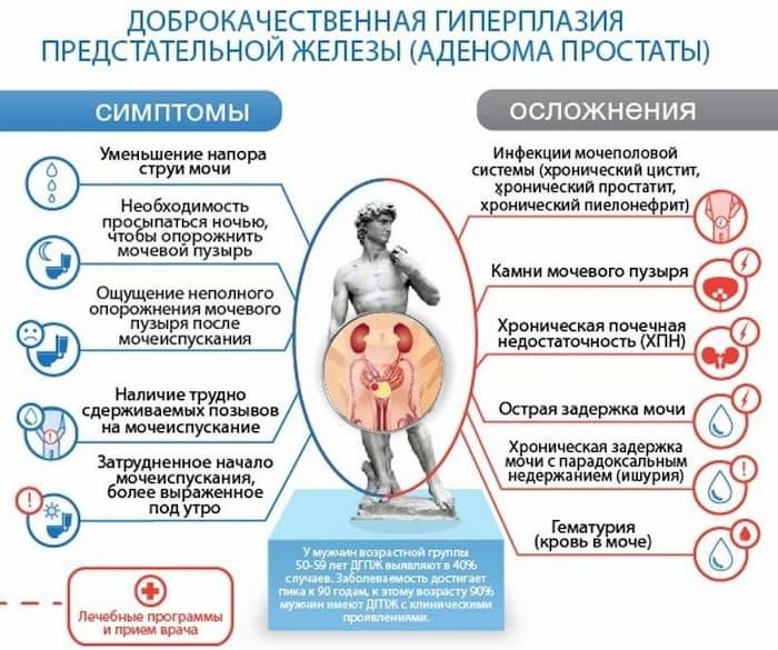 Симптомы аденомы простаты на 2 стадии