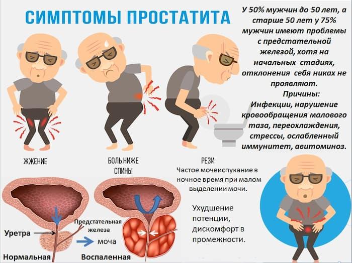 Симптомы атонического простатита