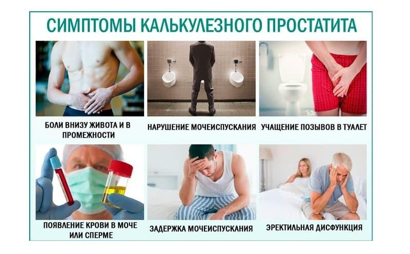 Симптомы калькулезного простатита у мужчин