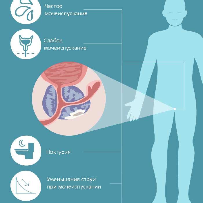 Симптомы неинфекционного простатита