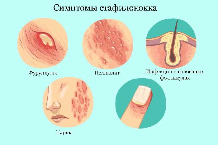 Симптомы-стафилококка-в-предстательной-железе